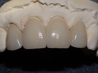 Ceramic Solutions' Precision Built Crowns