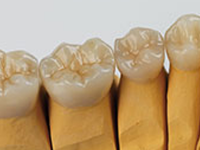 Monolithic crowns are ideal for the posteriors