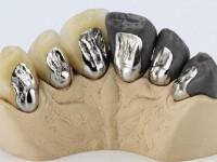 Bonded Porcelain to metal dental lab services